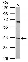 GTX115343 - ARPC1B / ARC41