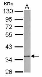 GTX115344 - ARPC1B / ARC41