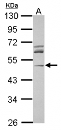 GTX115345 - ACTR3