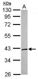 GTX115366 - RNF41