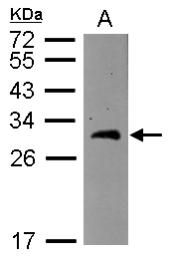 GTX115390 - BCAS2 / DAM1
