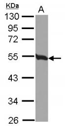 GTX115403 - TUBB2C