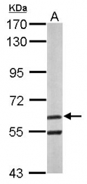 GTX115411 - ARIH2 / TRIAD1