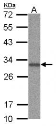 GTX115437 - ANP32B