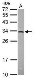 GTX115439 - MRPL28