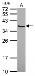 GTX115442 - Secretagogin (SCGN)