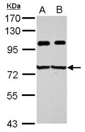 GTX115459 - IGF2BP3 / IMP3