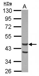 GTX115496 - ACTL7A