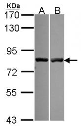 GTX115584 - Calpain-11
