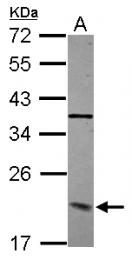 GTX115607 - Dynactin subunit 3