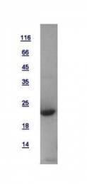GTX115607-pro - Dynactin subunit 3