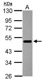 GTX115628 - ZNFN1A3 (IKZF3, Aiolos)