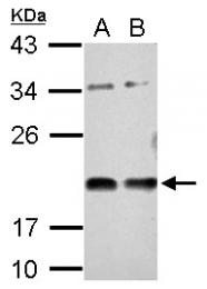 GTX115636 - Vasohibin-1 / VASH1
