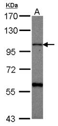 GTX115638 - CHSY1