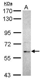 GTX115690 - MGRN1 / RNF156