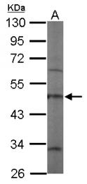 GTX115727 - Coronin-1C