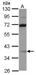 GTX115748 - SSBP3