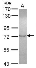 GTX115752 - ZFP95