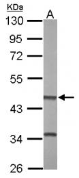 GTX115754 - BHMT2