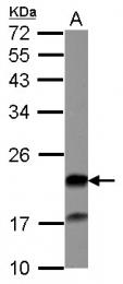 GTX115769 - Grancalcin
