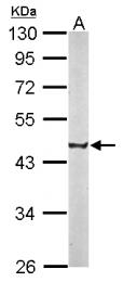 GTX115785 - CREST / SS18L1