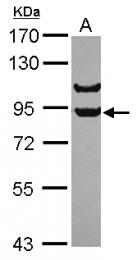 GTX115787 - APPL1 / DIP13A