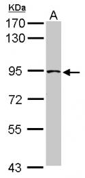 GTX115795 - TRPC4AP / TAP1 / TRUSS