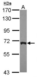 GTX115818 - ARFGAP3