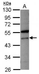 GTX115853 - VPS4A