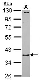 GTX115881 - Catenin alpha-3 / CTNNA3