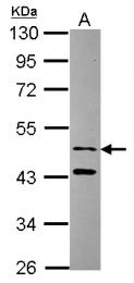 GTX115896 - Sorting nexin-15 (SNX15)