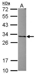 GTX115933 - ANP32A
