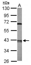 GTX115936 - ACTR2