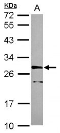 GTX115974 - CDK10