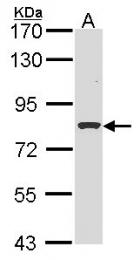 GTX116012 - Involucrin / IVL