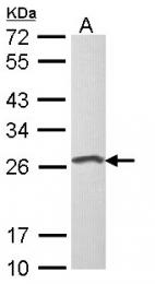 GTX116013 - Loricrin