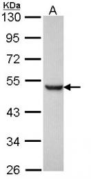 GTX116016 - Presenilin-1