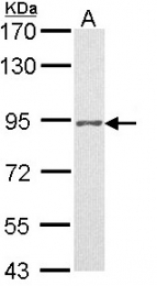 GTX116051 - Progesterone receptor