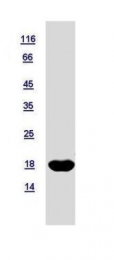 GTX116091-pro - NDP kinase B / NME2