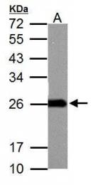 GTX116093 - Superoxide dismutase 2 / SOD2