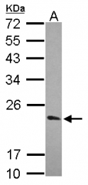 GTX116103 - KCNIP1 / VABP