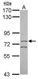 GTX116104 - CpG-binding protein