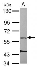 GTX116114 - ARHGEF3