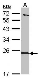 GTX116121 - Heme-binding protein 1 / HEBP1