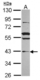 GTX116124 - VPS36