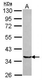 GTX116138 - TRIM17 / RNF16
