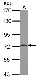 GTX116188 - CPSF3