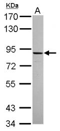GTX116206 - ADAM22 / MDC2
