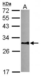 GTX116217 - DNALI1