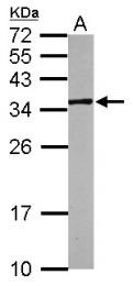 GTX116239 - Inositol oxygenase